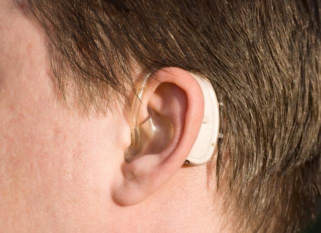 O que considerar na compra do aparelho auditivo?