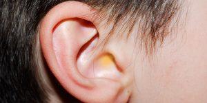 Secreção no ouvido: tire suas dúvidas sobre o assunto